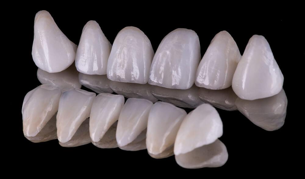 aisthitiki-epanorthwtiki-odontiatriki-02
